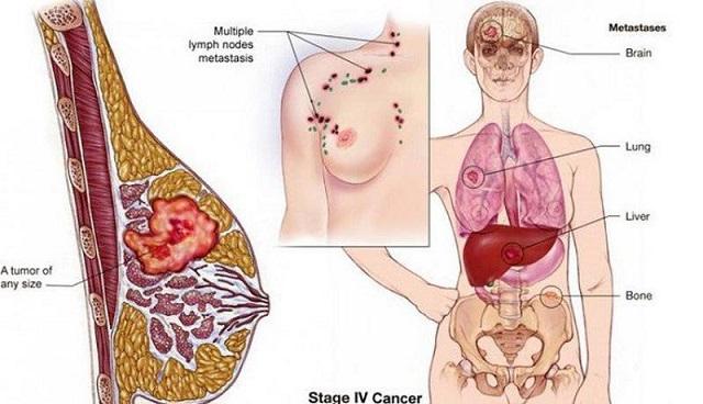 Ung thư di căn là gì. Nguồn: Internet